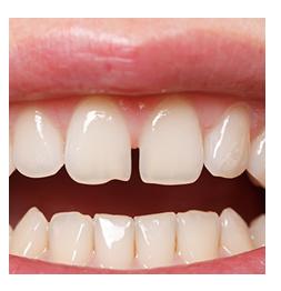 dente-espaçado